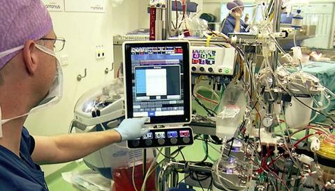 St. Antonius Ziekenhuis werkt met innovatieve hartlongmachine